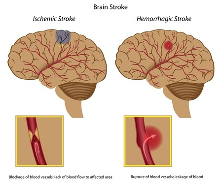 Brain Stroke specialist doctor in Hyderabad