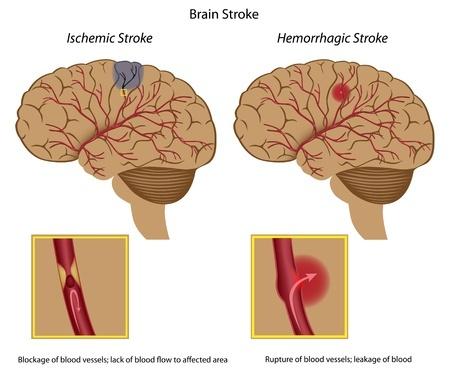 Brain Stroke specialist doctor in Hyderabad